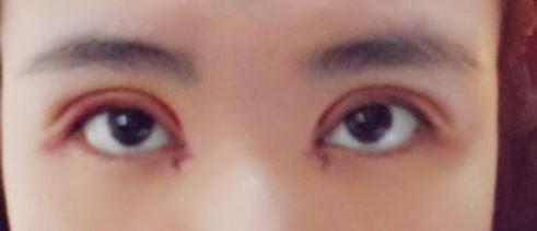 20岁贴了三年双眼皮贴,上眼皮松弛下垂,有什么办法可以恢复