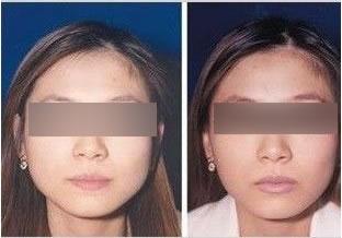 瘦脸针前后对比图图片