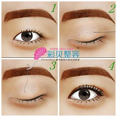 这种方法就是在眼皮上切三个小切口