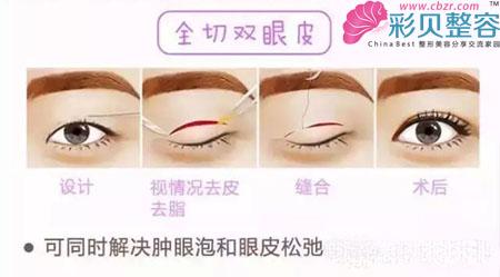 打造双眼皮的方法: 1,埋线双眼皮
