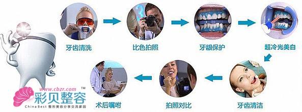 冷光美白有其他方法没有的特点: 1、效果显著:需要专业的牙医师进行操作,它的美白效果是比传统方法更快、更显著。 2、更快速:需要三十分钟的时间就能起到美白效果。 3、安全性高:它是使用物理还原原理,在美白牙齿后不会对牙齿或口腔组织造成伤害,也不会伤害任何口腔组织。