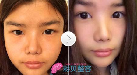 开眼角加双眼皮手术前后对比照