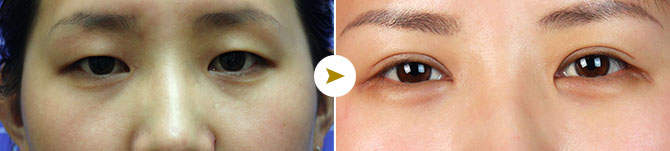丽都整形医院双眼皮手术案例