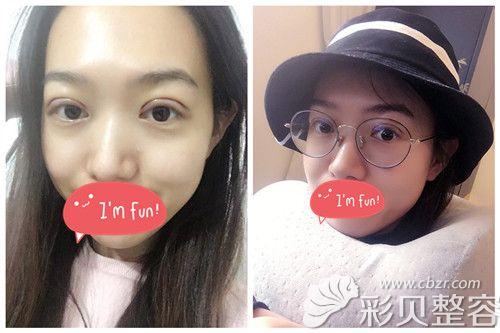 郑州集美整形双眼皮案例术后第5天效果图