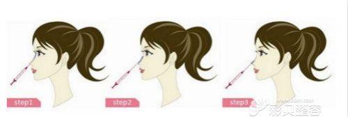 注射玻尿酸隆鼻示意图