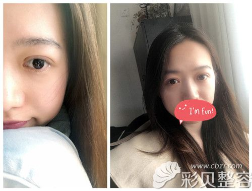 郑州集美整形双眼皮案例术后第20天效果图