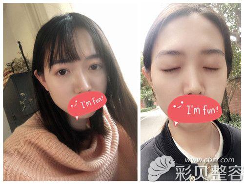 郑州集美整形双眼皮案例术后第45天效果图