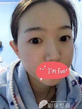 郑州集美整形双眼皮案例术前效果图