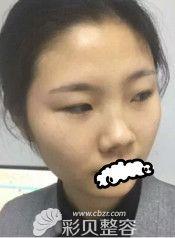 找武汉亚太程晓林做的网红翘鼻术前的样子