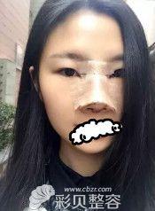 找武汉亚太程晓林做的网红翘鼻术后第7天