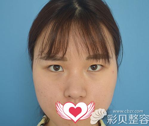沈阳协和整形外科杨威为我做7mm切开双眼皮+开眼角35天效果