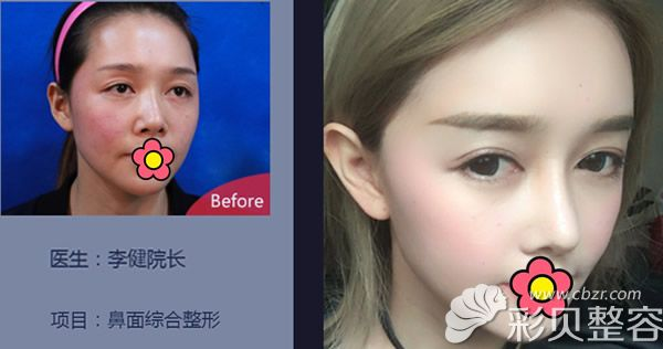 上海华美李健综合隆鼻+自体脂肪面部填充效果怎么样