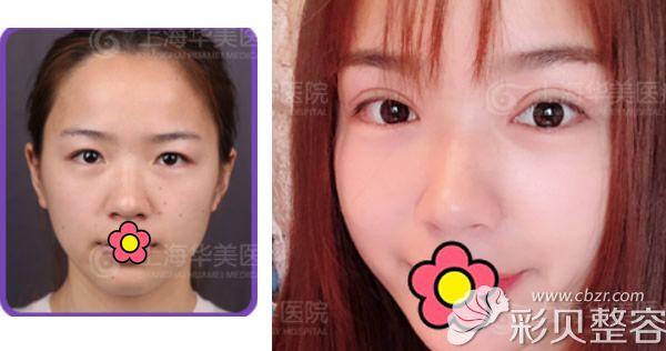 华美李健割双眼皮+开眼角2个月恢复效果