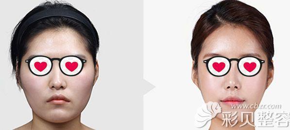 上海华美李志海医生下颌角整形前后效果对比图