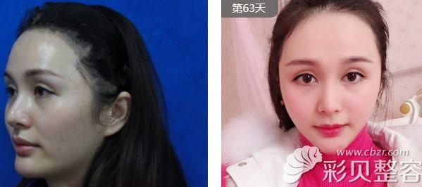 上海九院徐梁主任下颌角整形两个月的恢复效果