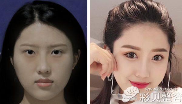 鹏爱徐占峰医生双眼皮失败修复+自体脂肪面部填充对比图