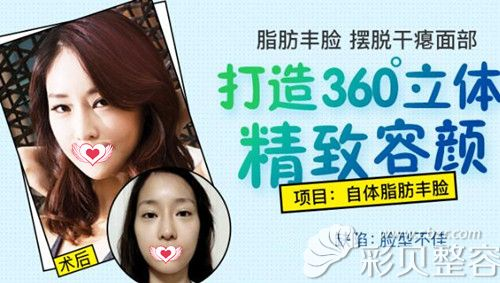 广州曙光脂肪精雕专家郭建脂肪填充全脸案例效果