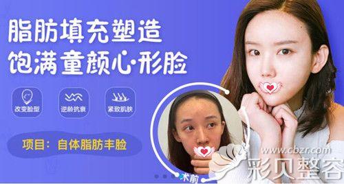 广州曙光脂肪精雕专家万友望脂肪填充全脸案例效果