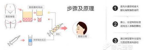 自体脂肪填充面部过程示意图