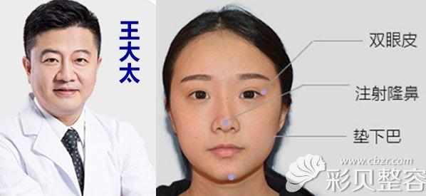 我找深圳江南春天王大太隆鼻和全切双眼皮后 美得无可救药