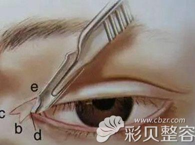 亲身经历告诉你双眼皮+开眼角术后疤痕增生0.5厘米多久消失