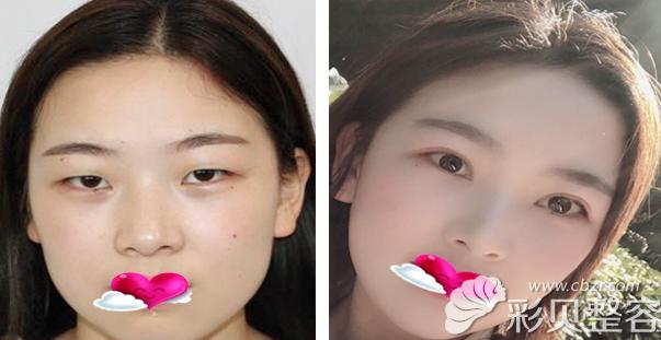 北京美莱整形医院双旦价格表及欧阳春医生的假体隆鼻案例