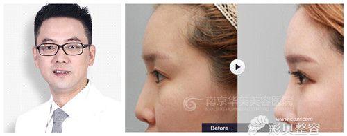 南京华美曹海峰和康美冯思阳哪个做鼻部综合整形好