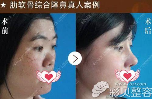 广州壹加壹冬季整形优惠 肋软骨隆鼻5折衡力瘦脸针仅999元