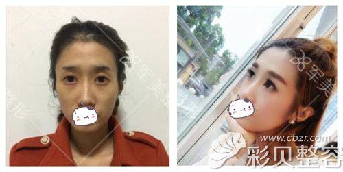 广州军美王娜自体脂肪填充面部案例对比