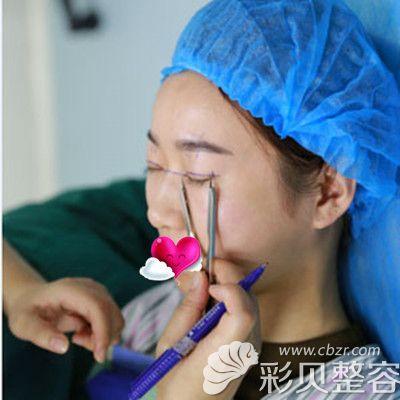 冯辉利割双眼皮术前画线时图片