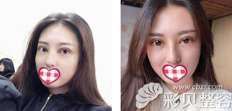 长沙美莱刘欢医生割双眼皮术后第10天案图