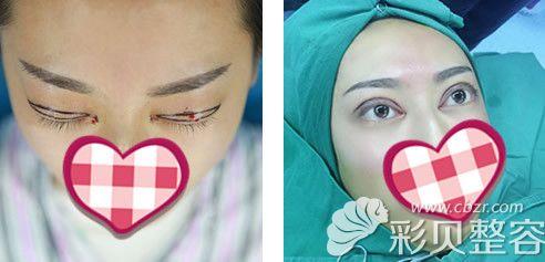 刘医生割双眼皮术后当天对比图