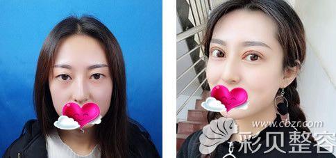 长沙美莱整形医院刘欢医生全切双眼皮术后对比照