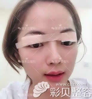 割双眼皮第一天