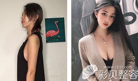 在韩国Profile整形做曼托假体隆胸效果对比图