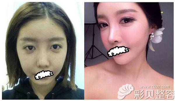 韩国profile改脸型真人效果术前术后对比照