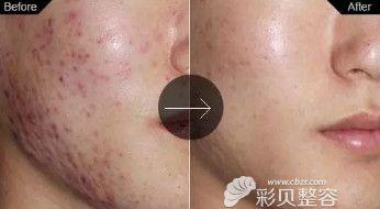 祛痘印激光手术_点阵激光祛痘印在杭州需要做几次才有效 价格贵不贵 - 整容资讯 ...