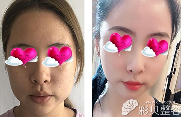 叁门峡美妙整顿形林海早医生瘦脸针术后40天恢骈对比案例