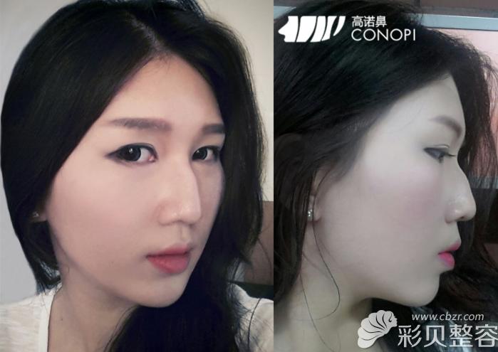 驼峰鼻被怀疑变性韩国高诺鼻整形郑太英矫正后脱胎换骨了