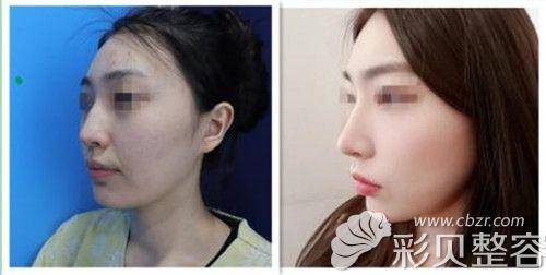 鼻综合前后对比图