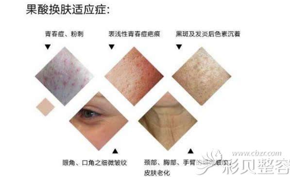 果酸换肤的危害图片
