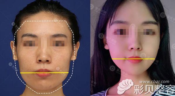 整容手术过程图片_削骨三年后的真实案例:大家看我做完下颌角手术变丑了没有 ...